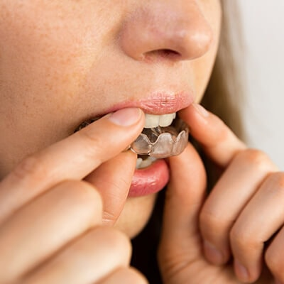 A close-up of a teenage girl putting some night guards on her teeth